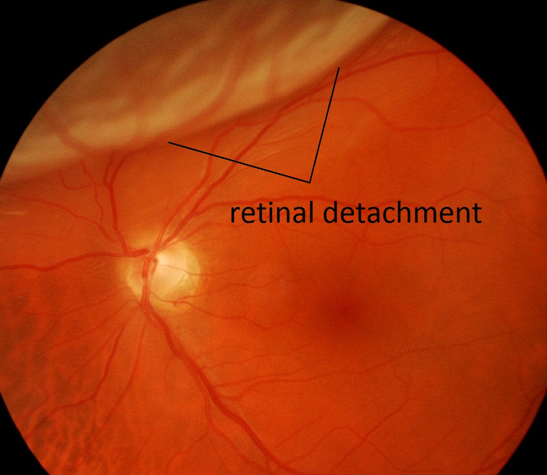laser eye surgery retina detachment Laser eye surgery slideshow retinal detachment symptom eye the eye doctor might recommend preventive fortifying vulnerable areas of the retina with laser or.