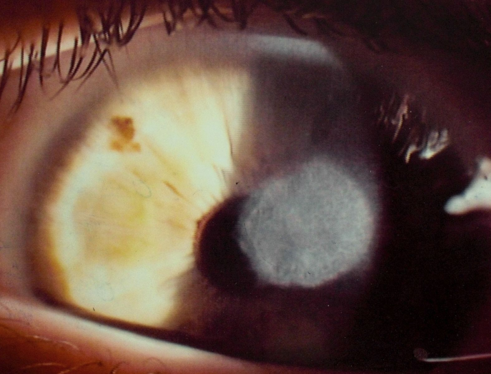 corneal ulcer A corneal ulcer occurs when deeper layers of the cornea are lost these ulcers are classified as superficial or deep.